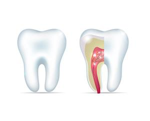 root canal treatment houston tx