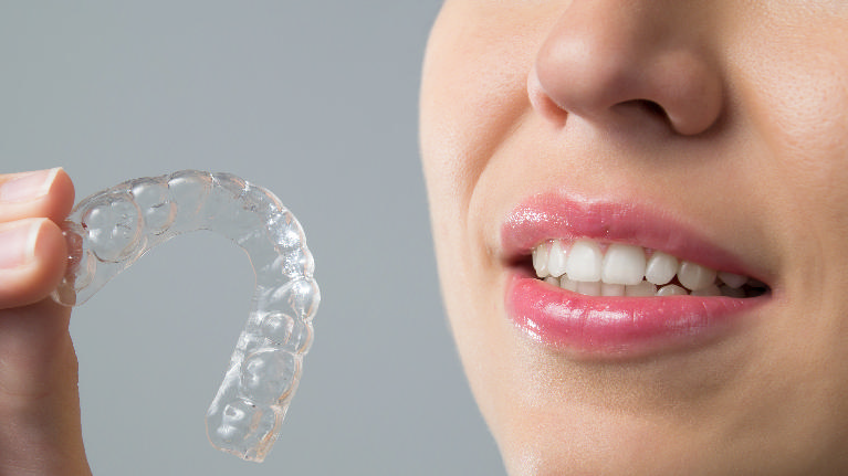 woman holding clear retainer | orthodontics houston tx
