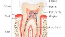 root canals houston tx | dentist bear creek houston tx