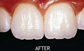 image of the same teeth after cosmetic bonding | Houston TX