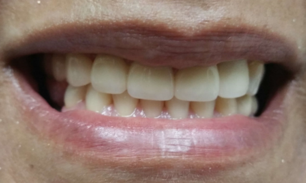 image of the same teeth after new crowns and bridges | Houston TX