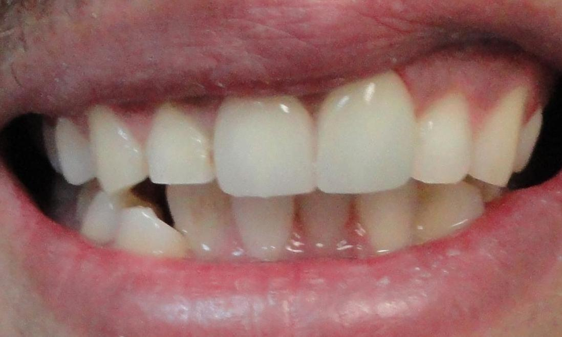 image of the same teeth after crowns | Houston TX