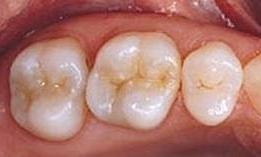 image of the same teeth after too colored fillings | Houston TX