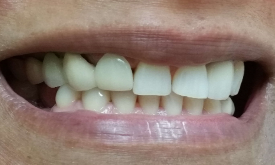 image of teeth with gaps and receded gum line | Houston TX