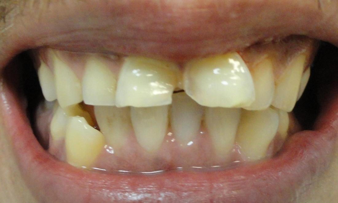image of chipped and crooked teeth | Houston TX